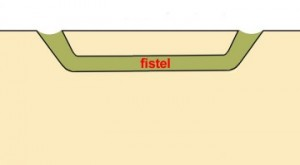 dit is een fistel